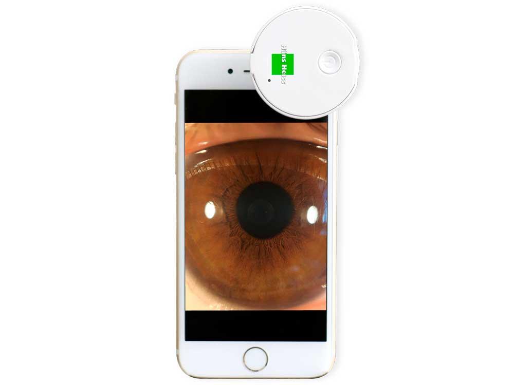 Smartphone Eye Imaging Adapter HSA-001