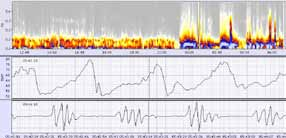 Fire of Life™ and Heart Rate Variability (HRV)